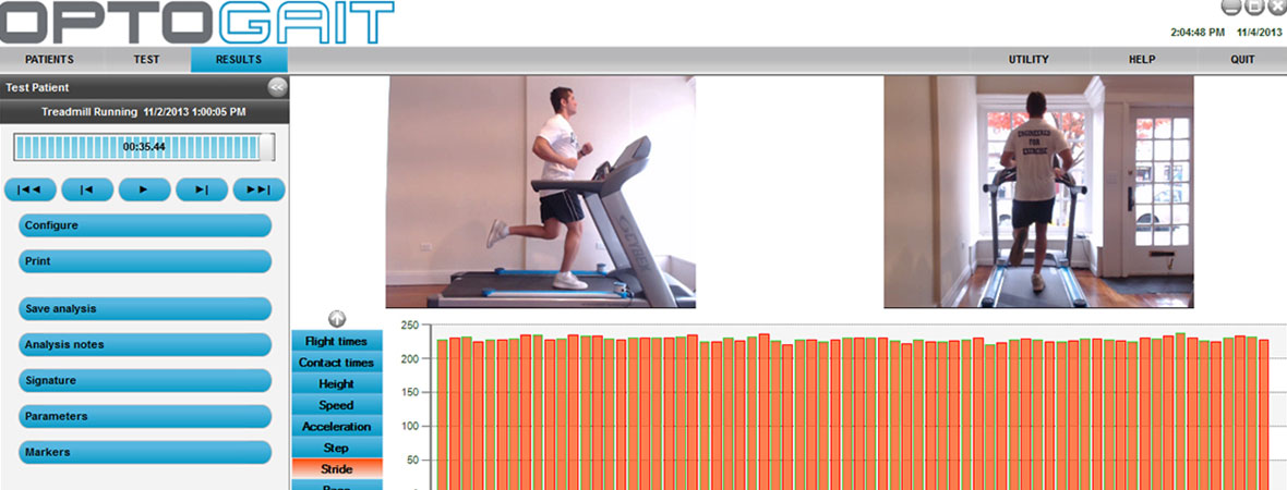 Optogait Treadmill Analysis